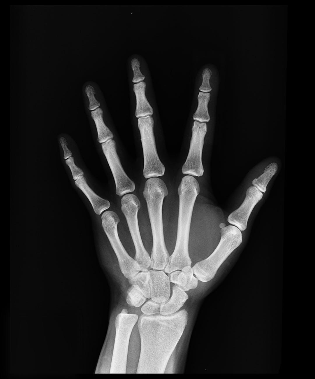 Radiografía de untrauma